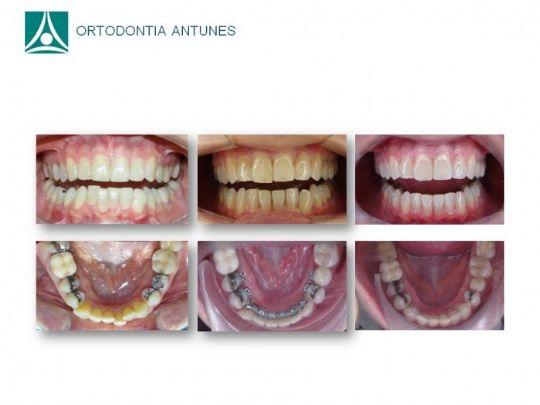Conheça as instalações da Ortodontia Antunes